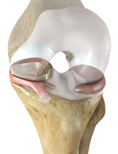 NUsurface Meniscus Implant