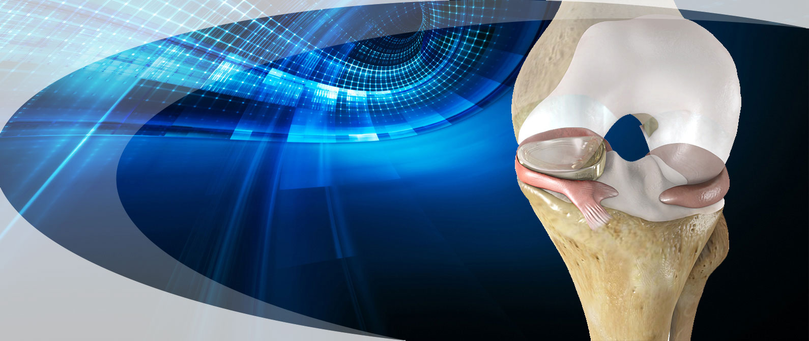 bone-knee-meniscus-pain-treatment